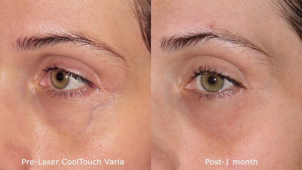 Actual un-retouched patient before and after CoolTouch Varia for blue veins around the eyes by Dr. Fabi. Disclaimer: Results may vary from patient to patient. Results are not guaranteed.