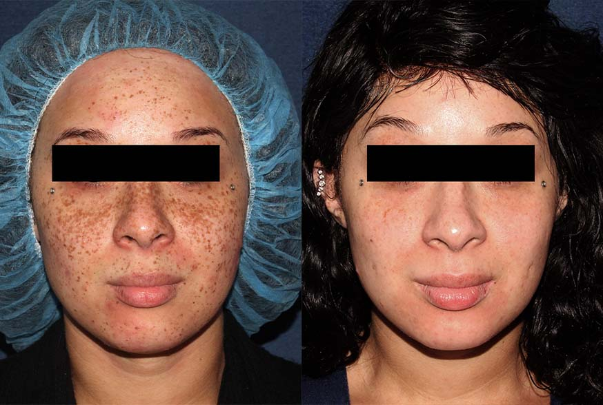 Actual un-retouched patient before and after Fraxel treatment for brown spots by Dr. Groff. Disclaimer: Results are not guaranteed.
