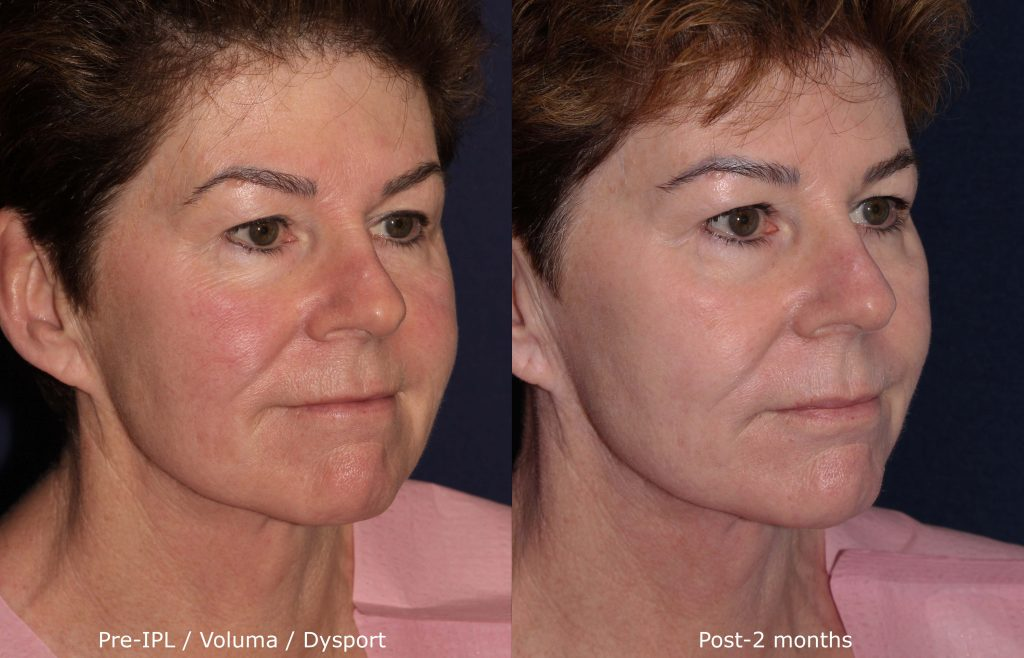 Actual un-retouched patient before and after IPL, Voluma and Dysport to treat redness and aging symptoms by Dr. Fabi. Disclaimer: Results are not guaranteed.