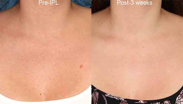 Actual un-retouched patient before and after of IPL for sun damage on the chest by Dr. Groff. Disclaimer: Results may vary from patient to patient. Results are not guaranteed.