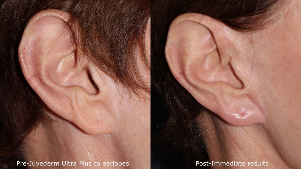 Actual un-retouched patient before and after Juvederm injections for earlobe shaping by Dr. Fabi. Disclaimer: Results may vary from patient to patient. Results are not guaranteed.