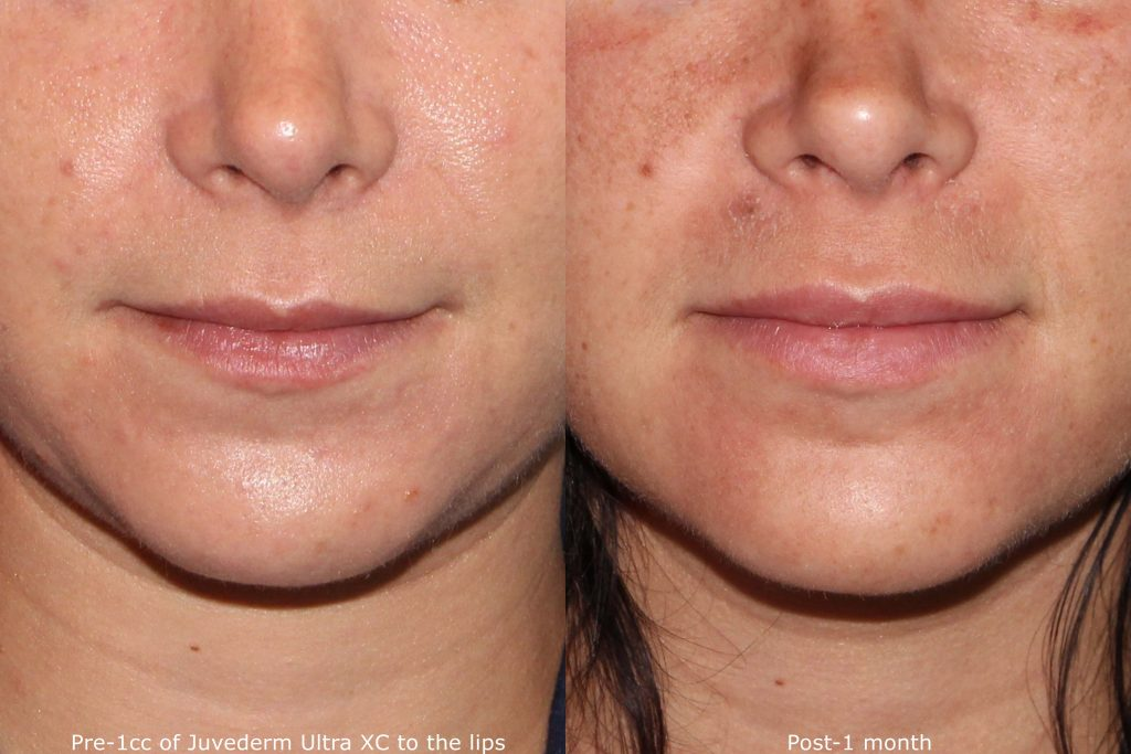 Actual un-retouched patient before and after lip augmentation using Juvederm Ultra by Dr. Groff. Disclaimer: Results are not guaranteed.