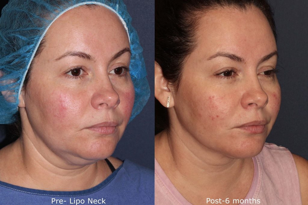 Actual un-retouched patient before and after liposculpture to treat submental fat under the chin. Results by Dr. Fabi. Disclaimer: Results are not guaranteed.