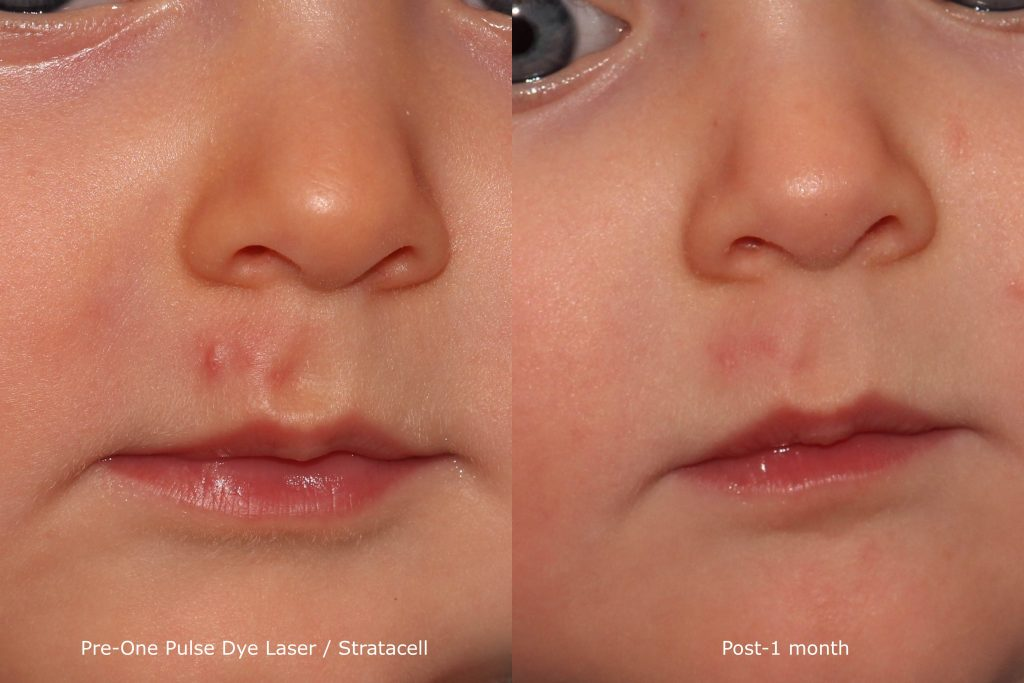 Actual un-retouched patient before and after pulsed dye laser to treat a hypertrophic scar on a 6-month old baby by Dr. Goldman. Disclaimer: Results are not guaranteed.