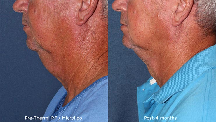 Actual un-retouched patient before and after ThermiTight to tighten chin and neck skin by Dr. Boen. Disclaimer: Results may vary from patient to patient. Results are not guaranteed.