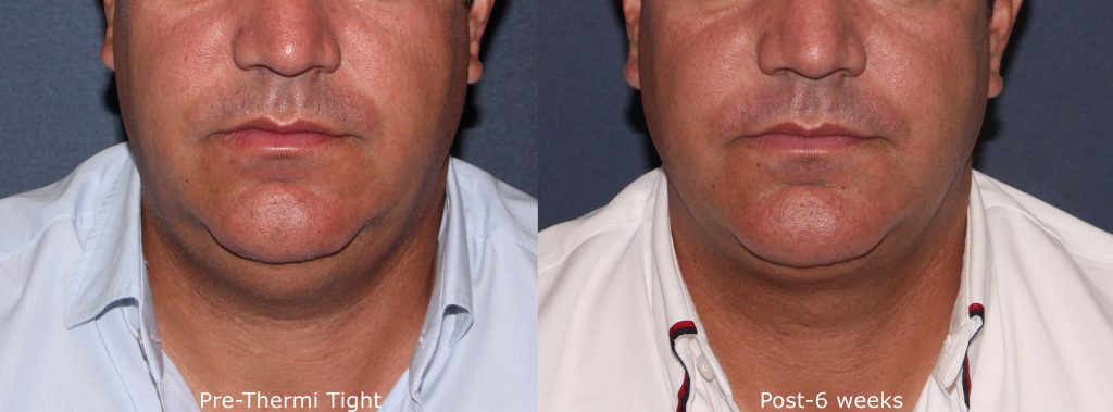 Actual un-retouched patient before and after ThermiTight for fullness under the chin by Dr. Groff. Disclaimer: Results may vary from patient to patient. Results are not guaranteed.