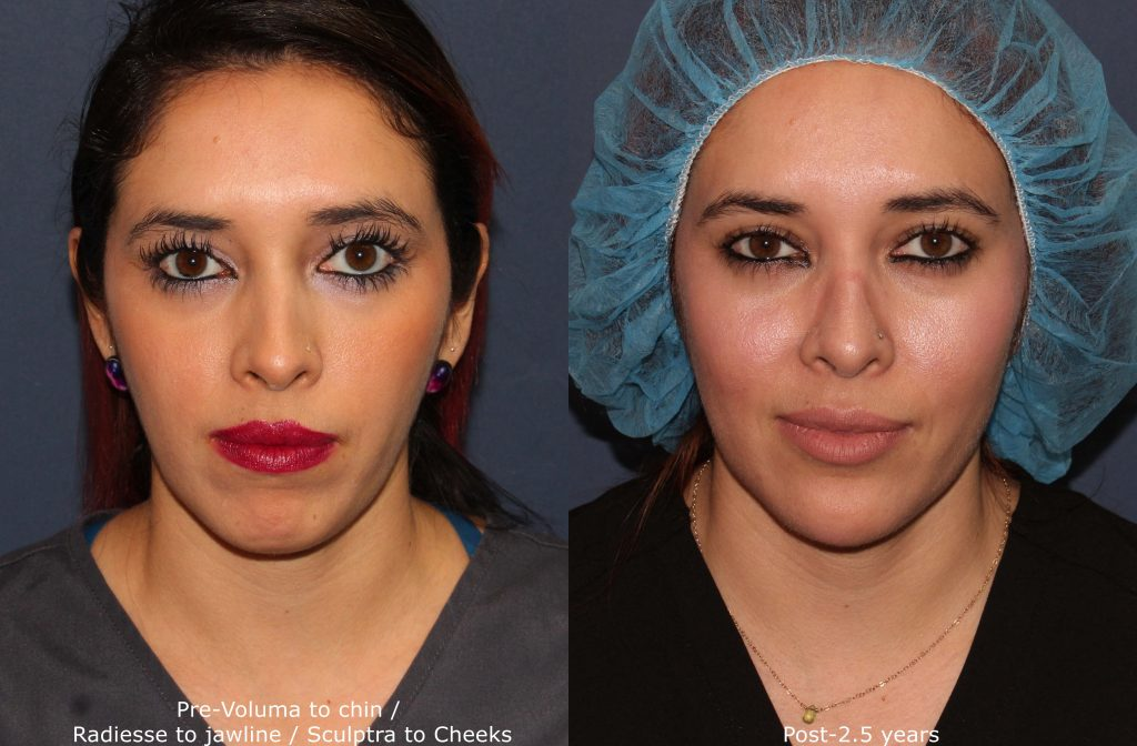 Actual un-retouched patient before and after Voluma injections to contour the chin by Dr. Fabi. Disclaimer: Results may vary from patient to patient. Results are not guaranteed.