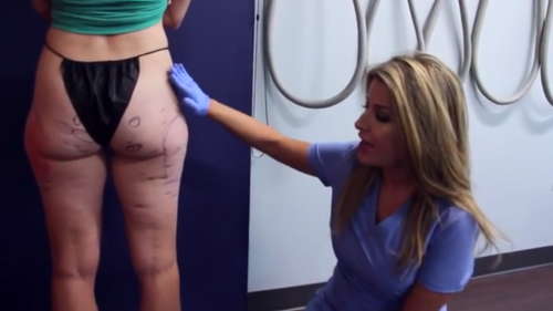 butt cellulite removal san diego