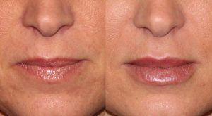 Images showing results before and after liquid facelift which removed lip wrinkles, San Diego, CA.