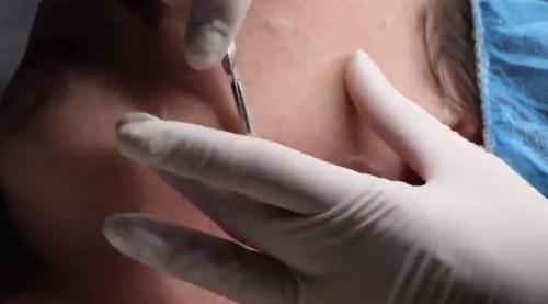 facial skin care dermaplaning san diego
