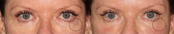 Actual unretouched patient before and after CoolTouch Varia to treat veins around the eyes by Dr. Groff. Disclaimer: Results may vary from patient to patient. Results are not guaranteed.