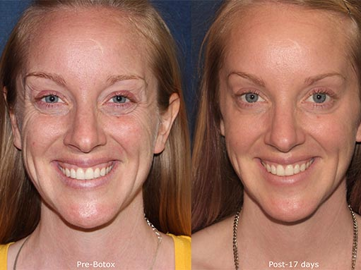 Actual un-retouched patient before and after Botox injections to treat crow's feet by Dr. Fabi Disclaimer: Results may vary from patient to patient. Results are not guaranteed