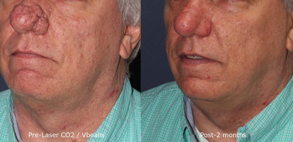 Actual un-retouched patient before and after VBeam and Co2 laser treatment to address pigmentation and skin redness by Dr. Groff. Disclaimer: Results may vary from patient to patient. Results are not guaranteed