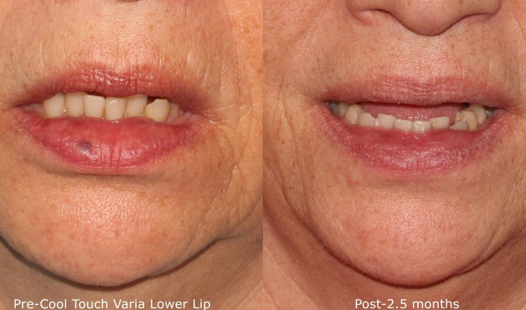 Actual un-retouched patient before and after CoolTouch Varia treatment to treat lips by Dr. Groff. Disclaimer: Results may vary from patient to patient. Results are not guaranteed