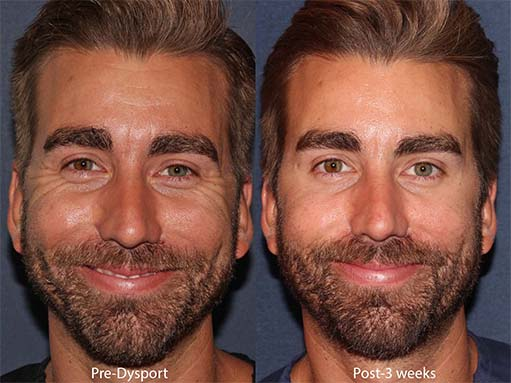 Actual un-retouched patient before and after Dysport to treat crow's feet and forehead lines by Dr. Groff Disclaimer: Results may vary from patient to patient. Results are not guaranteed