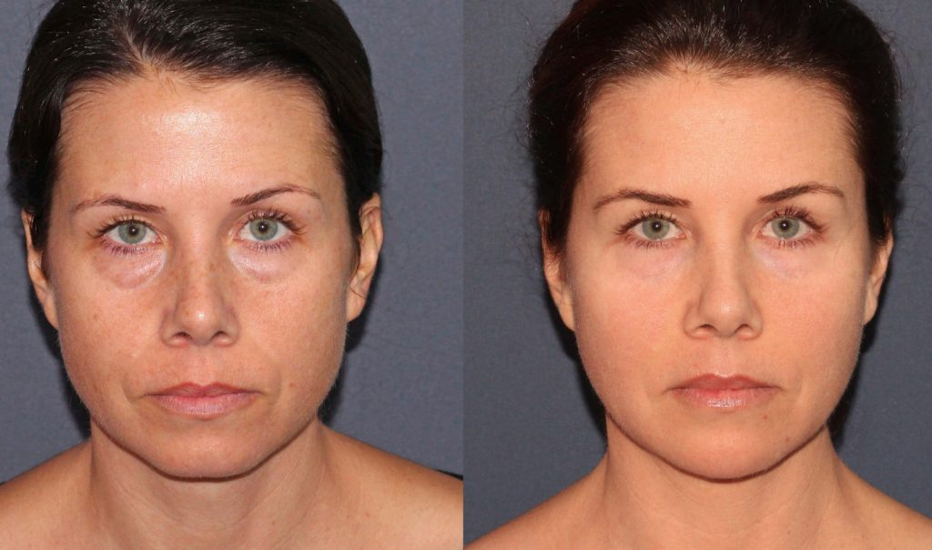 Actual un-retouched patient before and after Voluma, Botox and CO2 laser resurfacing to rejuvenate the skin with Dr. Fabi. Disclaimer: Results may vary from patient to patient. Results are not guaranteed