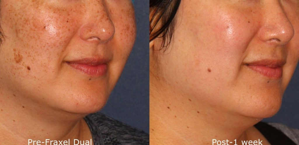 Actual un-retouched patient before and after Fraxel Dual treatment to reduce skin discoloration by Dr. Groff. Disclaimer: Results may vary from patient to patient. Results are not guaranteed