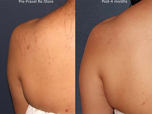 Actual un-retouched patient before and after Fraxel treatment for shoulder scars by Dr. Fabi Disclaimer: Results may vary from patient to patient. Results are not guaranteed
