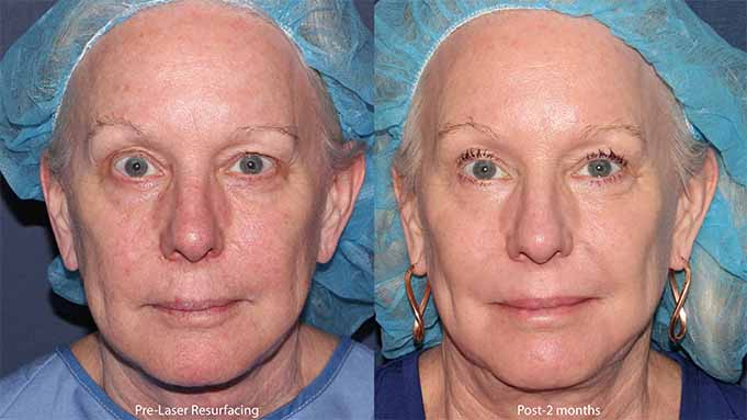 Actual un-retouched patient before and after laser resurfacing for skin rejuvenation by Dr. Groff. Disclaimer: Results may vary from patient to patient. Results are not guaranteed