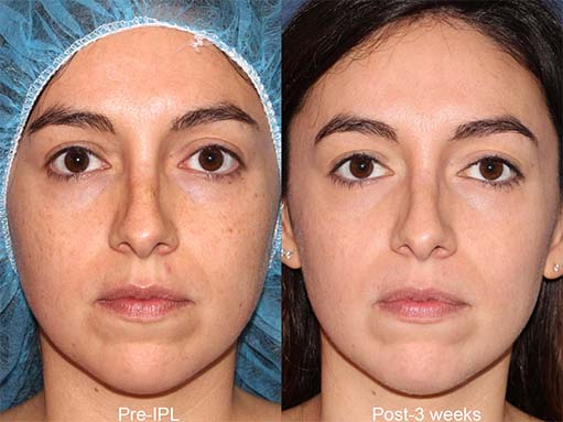 Actual un-retouched patient before and after IPL photofacial to treat sun damage by Dr. Groff Disclaimer: Results may vary from patient to patient. Results are not guaranteed