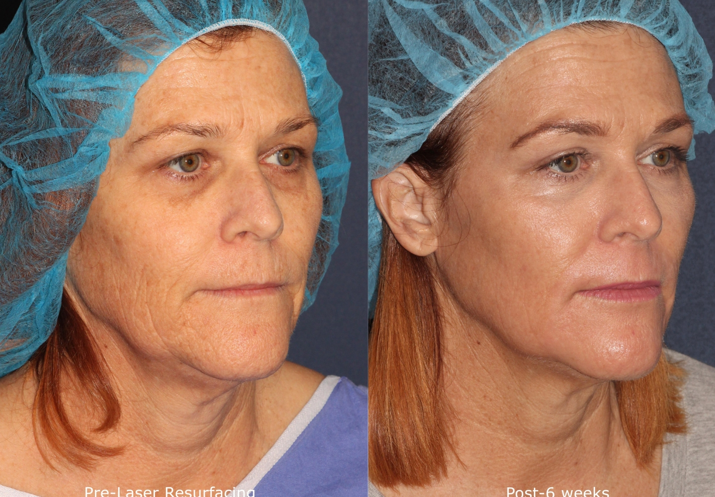 Actual un-retouched patient before and after laser resurfacing for facial rejuvenation by Dr. Fabi. Disclaimer: Results may vary from patient to patient. Results are not guaranteed