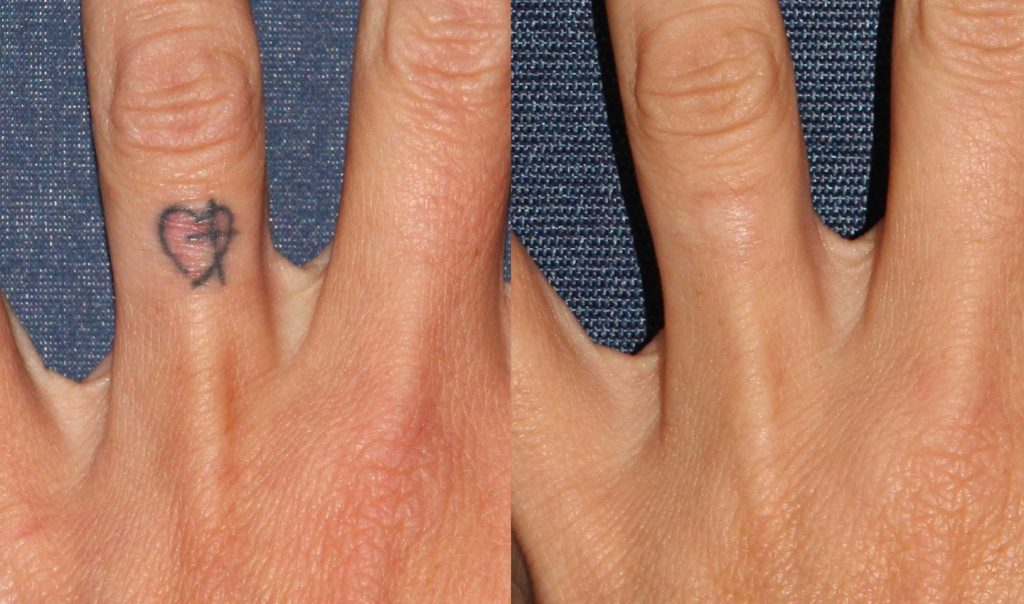 Actual un-retouched patient before and after laser treatment for tattoo removal by Dr. Groff. Disclaimer: Results may vary from patient to patient. Results are not guaranteed