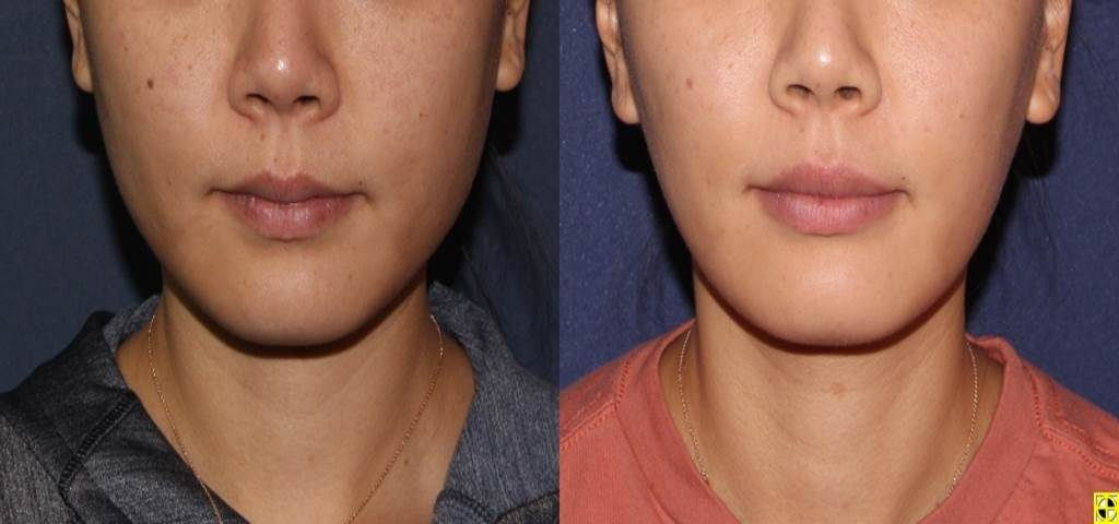Actual un-retouched patient before and after Botox injections to the masseter muscles for facial slimming by Dr. Boen. Disclaimer: Results may vary from patient to patient. Results are not guaranteed