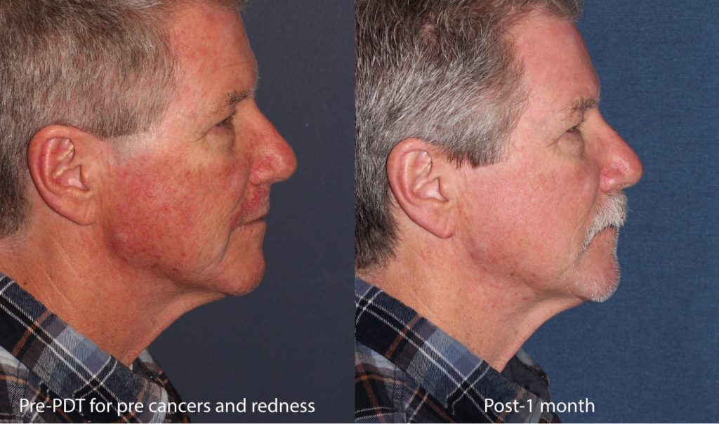 Actual un-retouched patient before and after photodynamic therapy for pre-cancerous lesions and facial redness by Dr. Butterwick. Disclaimer: Results may vary from patient to patient. Results are not guaranteed