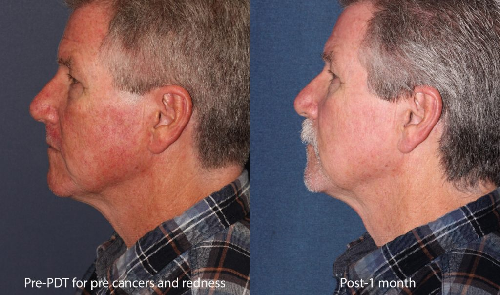 Actual un-retouched patient before and after photodynamic therapy for pre-cancerous lesions and facial redness. Disclaimer: Results may vary from patient to patient. Results are not guaranteed