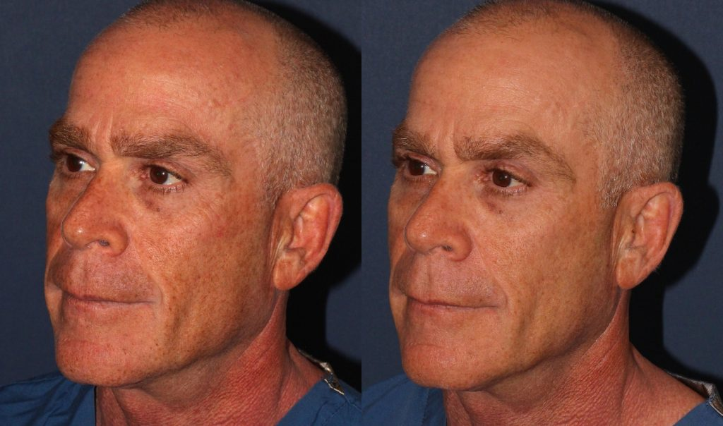Actual un-retouched patient before and after PicoWay and Fraxel Dual laser treatment for skin pigmentation by Dr. Wu. Disclaimer: Results may vary from patient to patient. Results are not guaranteed