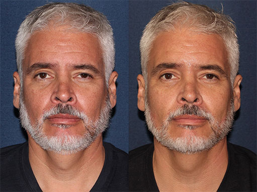 Actual un-retouched patient before and after Radiesse injections to augment the cheeks by Dr. Fabi Disclaimer: Results may vary from patient to patient. Results are not guaranteed