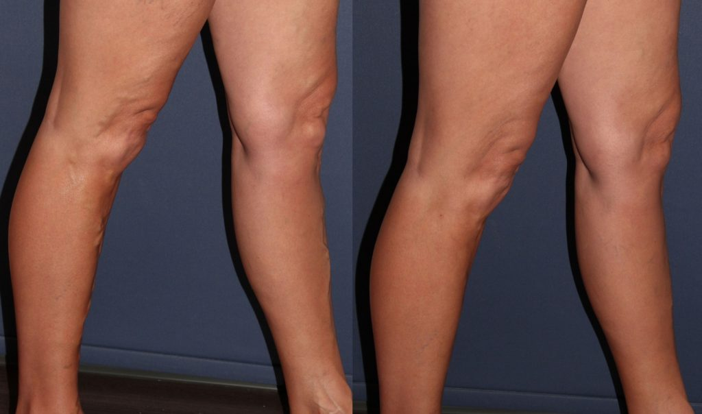 Actual un-retouched patient before and after treatment for leg veins using Sotradecol foam by Dr. Goldman. Disclaimer: Results may vary from patient to patient. Results are not guaranteed