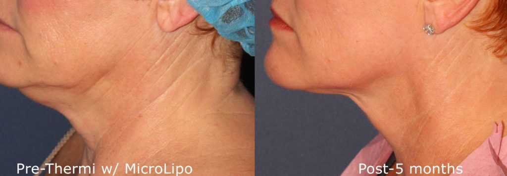 Actual un-retouched patient before and after ThermiTight and MicroLipo for chin contouring by Dr. Wu. Disclaimer: Results may vary from patient to patient. Results are not guaranteed