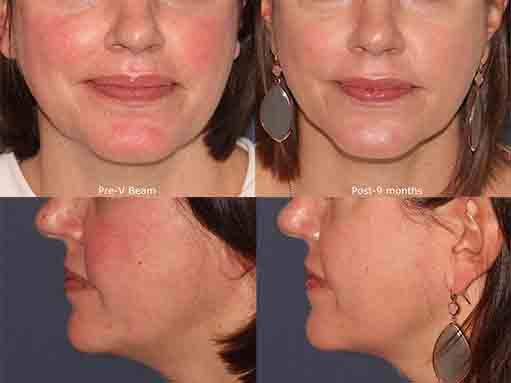 Actual un-retouched patient before and after Vbeam to treat facial redness by Dr. Groff Disclaimer: Results may vary from patient to patient. Results are not guaranteed