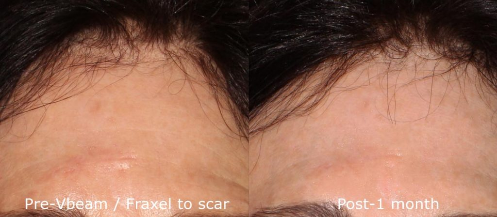 Actual un-retouched patient before and after Vbeam and Fraxel to treat forehead scar by Dr. Groff. Disclaimer: Results may vary from patient to patient. Results are not guaranteed