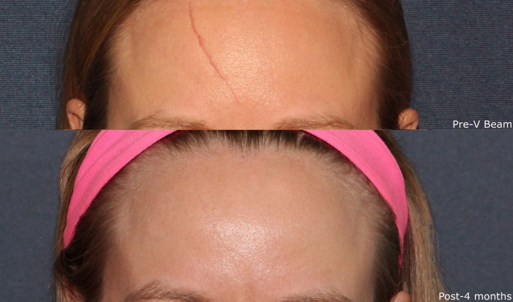 Actual un-retouched patient before and after VBeam laser treatment for scar removal by Dr. Wu. Disclaimer: Results may vary from patient to patient. Results are not guaranteed
