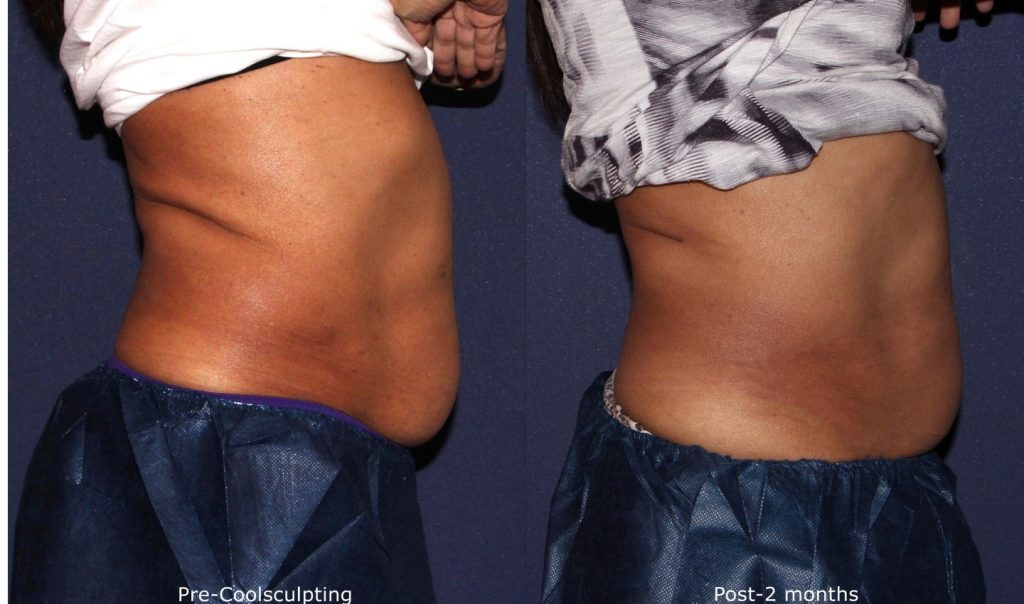 Actual un-retouched patient before and after Coolsculpting treatment to the abdomen by Dr. Wu. Disclaimer: Results may vary from patient to patient. Results are not guaranteed