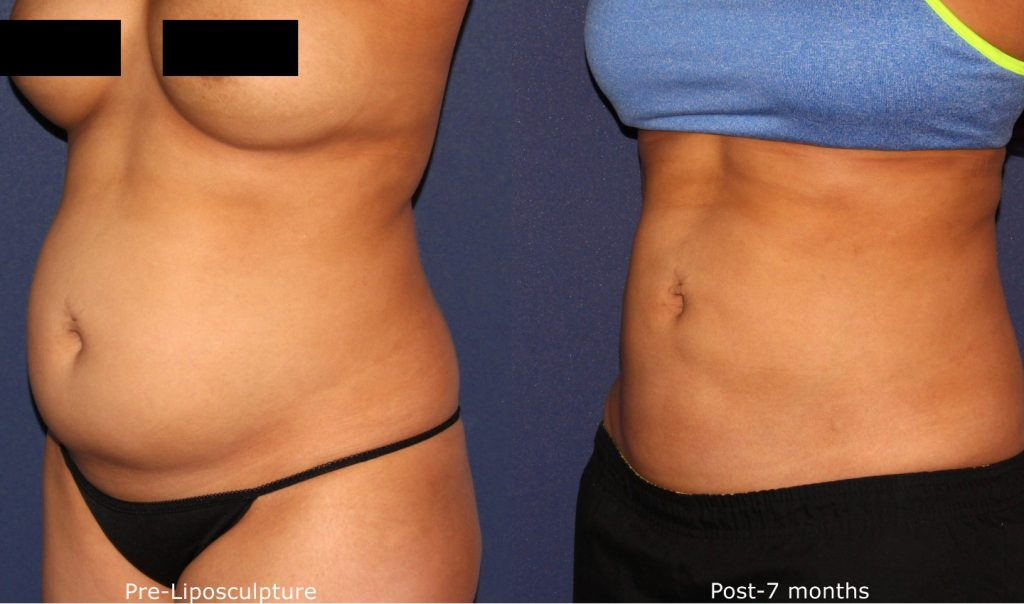 Actual un-retouched patient before and after liposculpture to the abdomen by Dr. Wu. Disclaimer: Results may vary from patient to patient. Results are not guaranteed