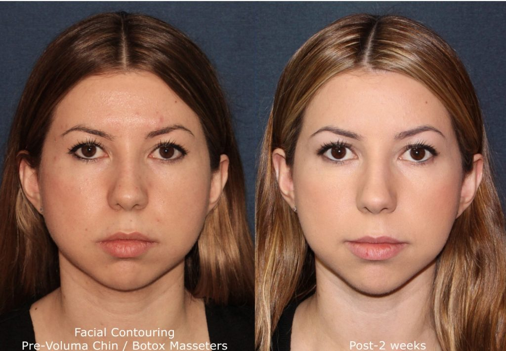 Actual un-retouched patient before and after Voluma for cheek augmentation and Botox for masseter reduction by Dr. Fabi. Disclaimer: Results may vary from patient to patient. Results are not guaranteed