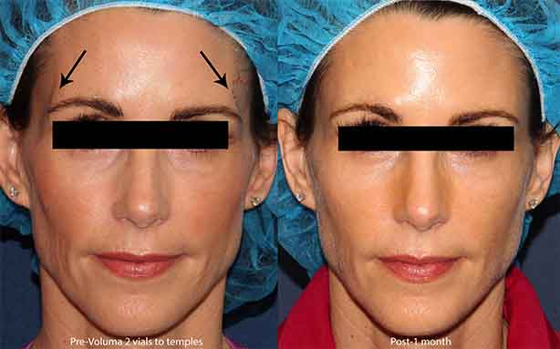 Actual un-retouched patient before and after Voluma injections to the temples by Dr. Groff. Disclaimer: Results may vary from patient to patient. Results are not guaranteed.