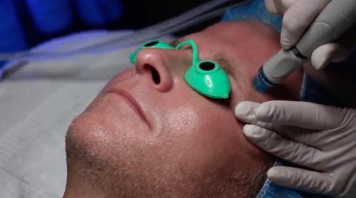 patient getting a skin care procedure