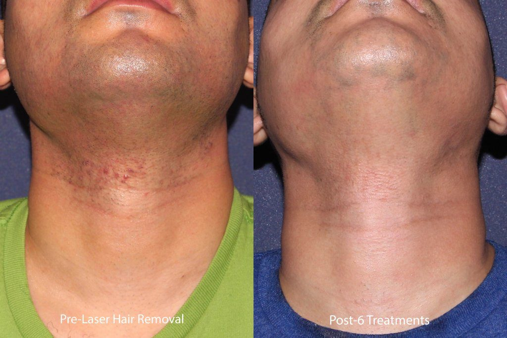Actual un-retouched patient before and after laser hair removal to neck by Leysin Fletcher, PA-C. Disclaimer: Results may vary from patient to patient. Results are not guaranteed.