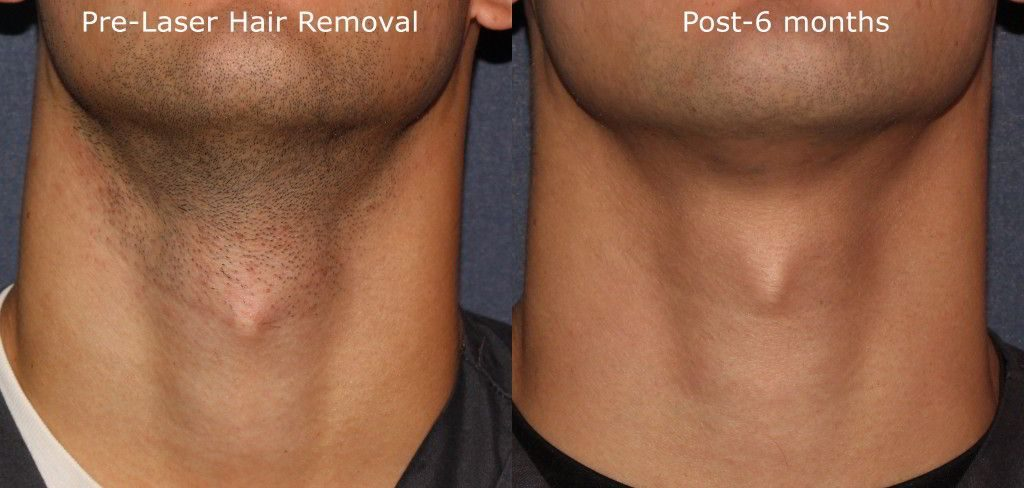 Actual un-retouched patient before and after laser hair removal on the neck by Leysin Fletcher, PA-C. Disclaimer: Results may vary from patient to patient. Results are not guaranteed.