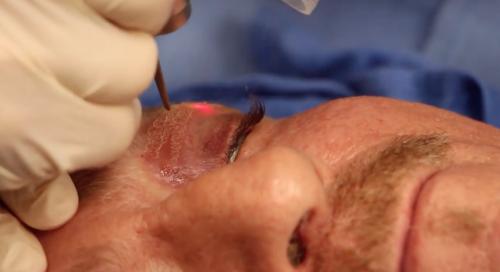 laser treatment on the eyelids