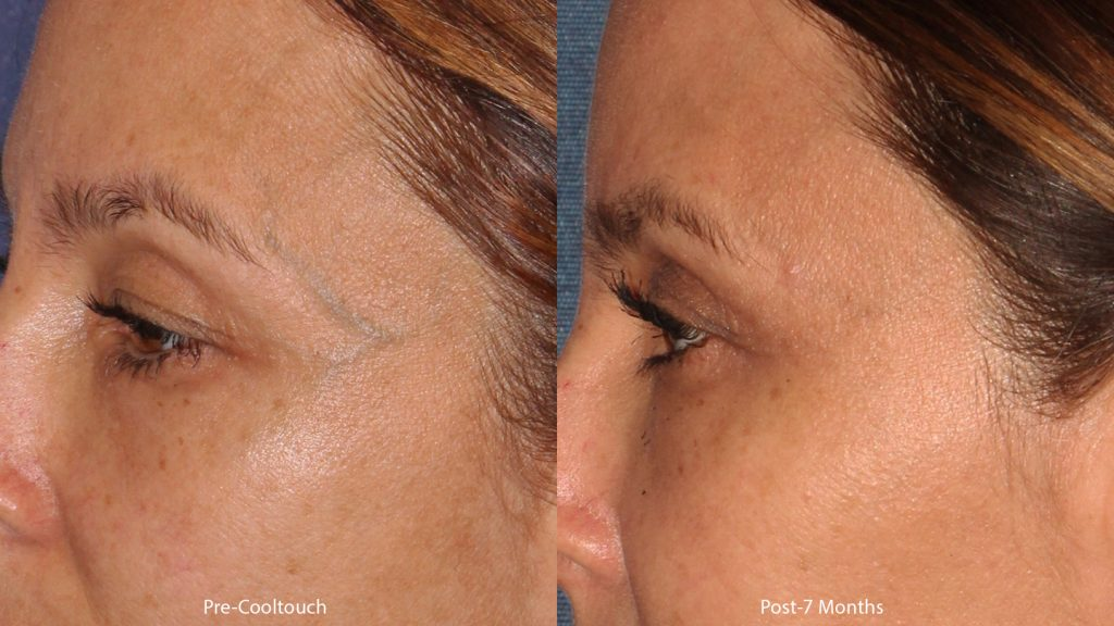 Actual un-retouched patient before and after CoolTouch Varia laser treatment to address veins around the eyes by Dr. Wu. Disclaimer: Results may vary from patient to patient. Results are not guaranteed.