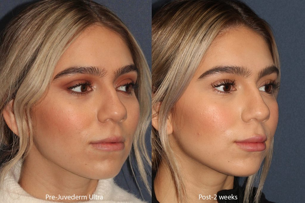 Actual un-retouched patient before and after Juvederm injections to augment the lips by Dr. Boen. Disclaimer: Results may vary from patient to patient. Results are not guaranteed.