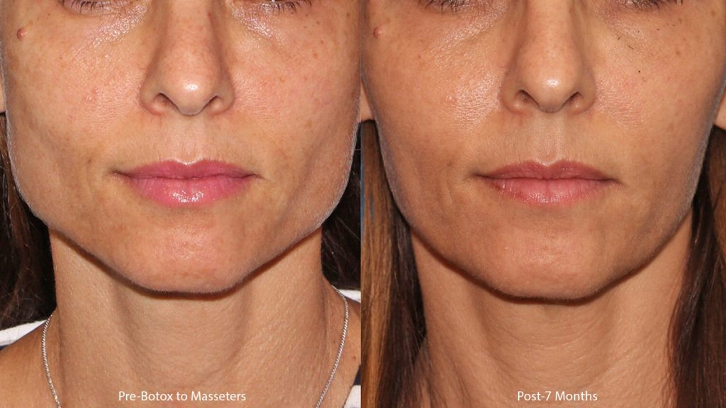 Actual un-retouched patient before and after Botox injections to the masseter muscle for jaw slimming with Dr. Wu. Disclaimer: Results may vary from patient to patient. Results are not guaranteed.