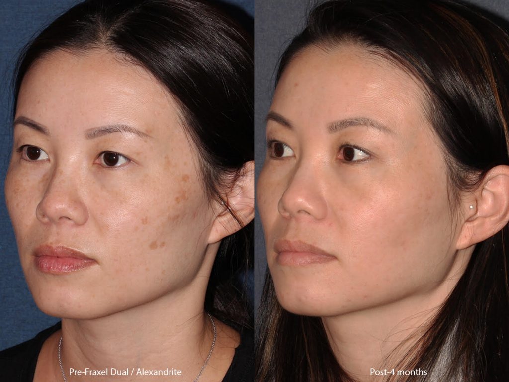 Actual un-retouched patient before and after of Fraxel Dua and Alexandrite laser treatment for pigmentation by Dr. Groff. Disclaimer: Results may vary from patient to patient. Results are not guaranteed.
