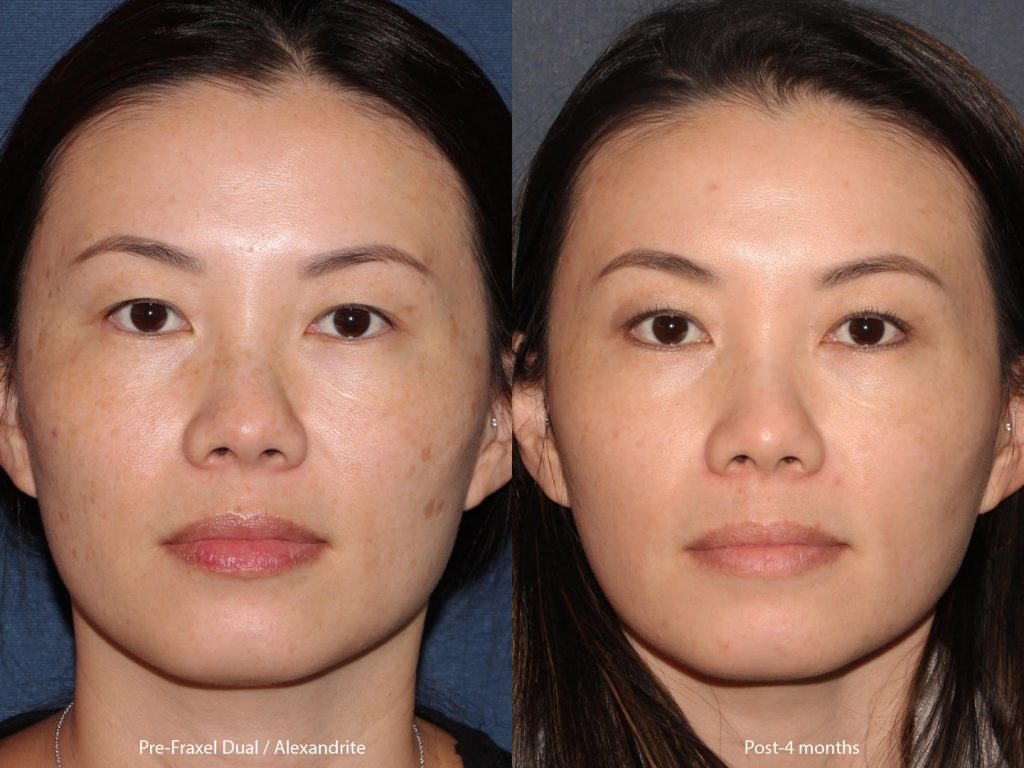 Actual un-retouched patient before and after of Fraxel Dual and Alexandrite laser treatment to address skin pigmentation with Dr. Groff. Disclaimer: Results may vary from patient to patient. Results are not guaranteed.