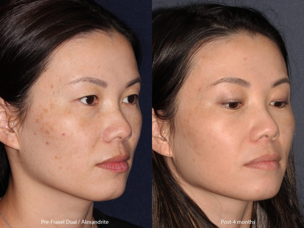 Actual un-retouched patient before and after Fraxel Dual and Alexandrite laser treatment for hyperpigmentation with Dr. Groff. Disclaimer: Results may vary from patient to patient. Results are not guaranteed.